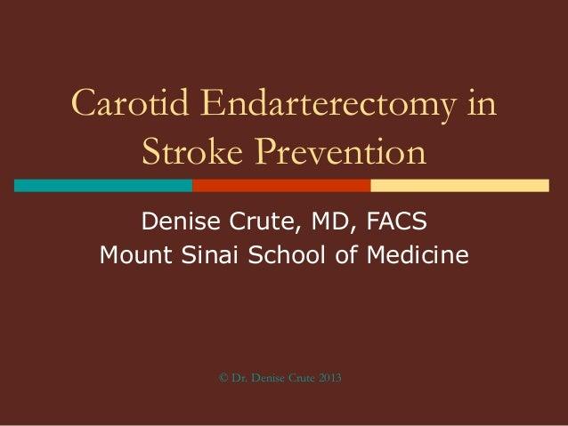 Carotid Endarterectomy in Stroke Prevention Denise Crute, MD, FACS Mount Sinai School of Medicine  © Dr. Denise Crute 2013