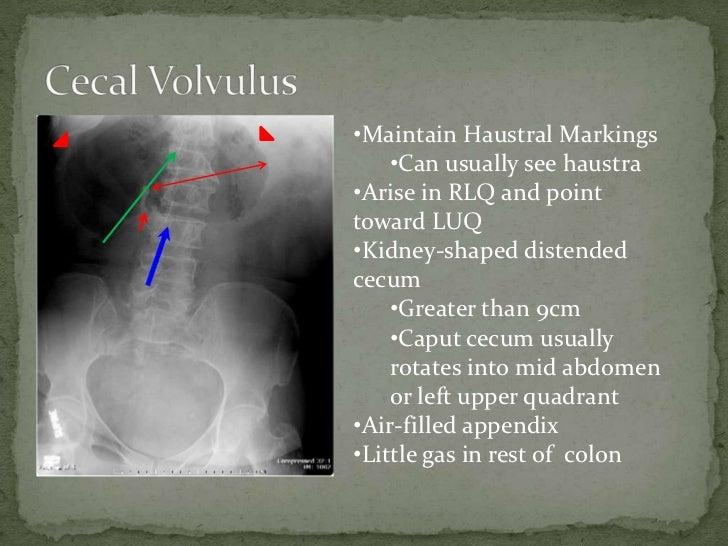 Cecal Volvulus
