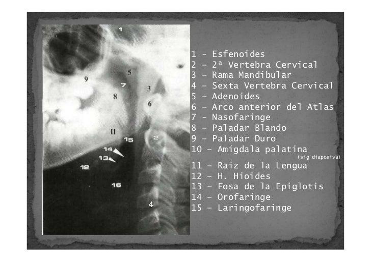 Cefalometria Anatomia Y Puntos