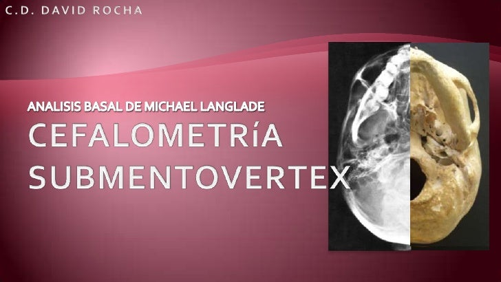 ANALISIS BASAL DE MICHAEL LANGLADE<br />CEFALOMETRíA SUBMENTOVERTEX <br />C.D. DAVID ROCHA<br />