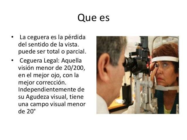 Que es • La ceguera es la pérdida del sentido de la vista. puede ser total o parcial. • Ceguera Legal: Aquella visión meno...
