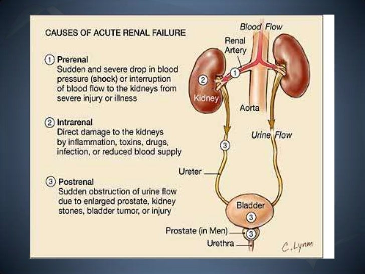 thesis on acute renal failure