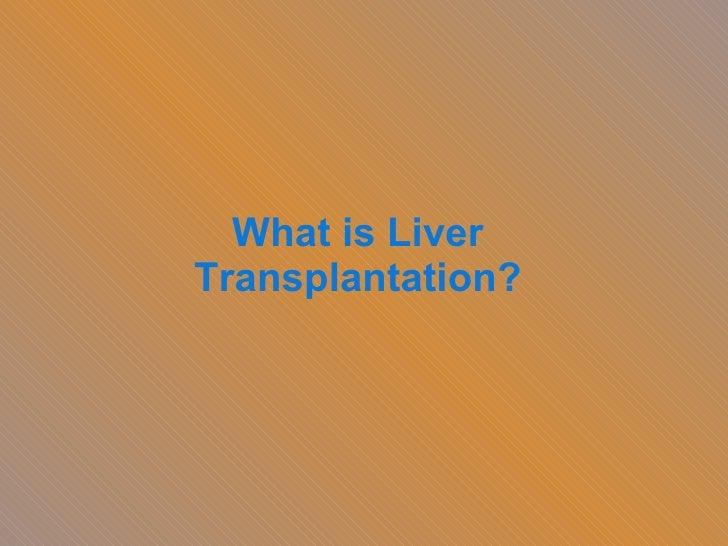 What is Liver Transplantation?