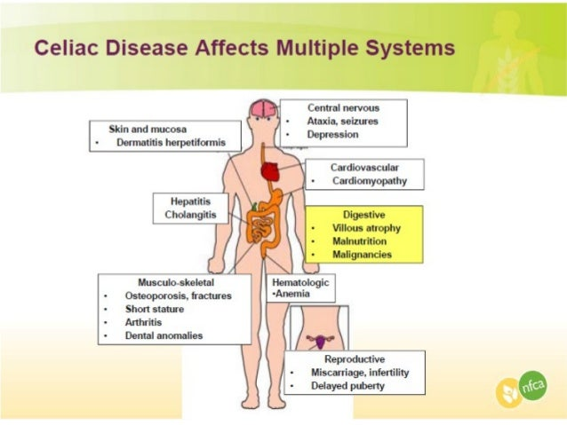 Distended Stomach – Symptoms, Causes and Treatment