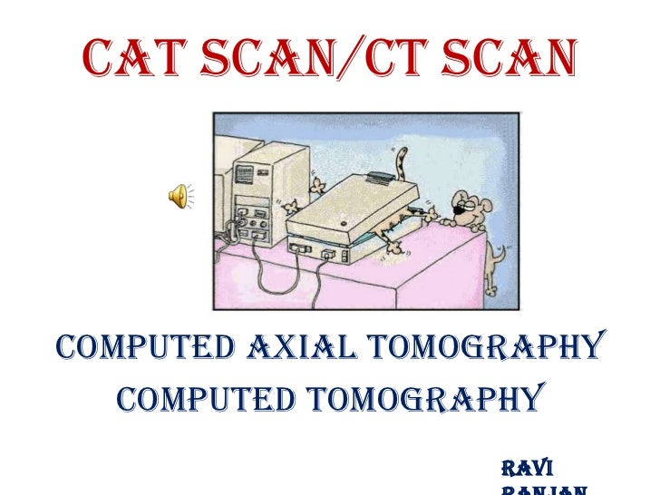 CAT Scan/CT ScanComputed Axial Tomography   Computed Tomography                    Ravi