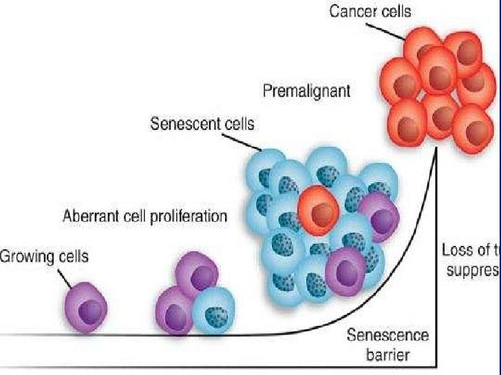 theories of genes and cancer Desire for knowledge about the genetic origin and the evolutionary progression of cancer has spurred efforts to sequence whole exomes and genomes of tumors and somatic tissues of patients in exhaustive efforts to identify genetic drivers and targets for therapy.