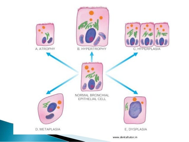cellular adaptation Cellular injury, cell adaptation & cell death pathology study of structural & functional changes in cells, tissues, & organs uses.