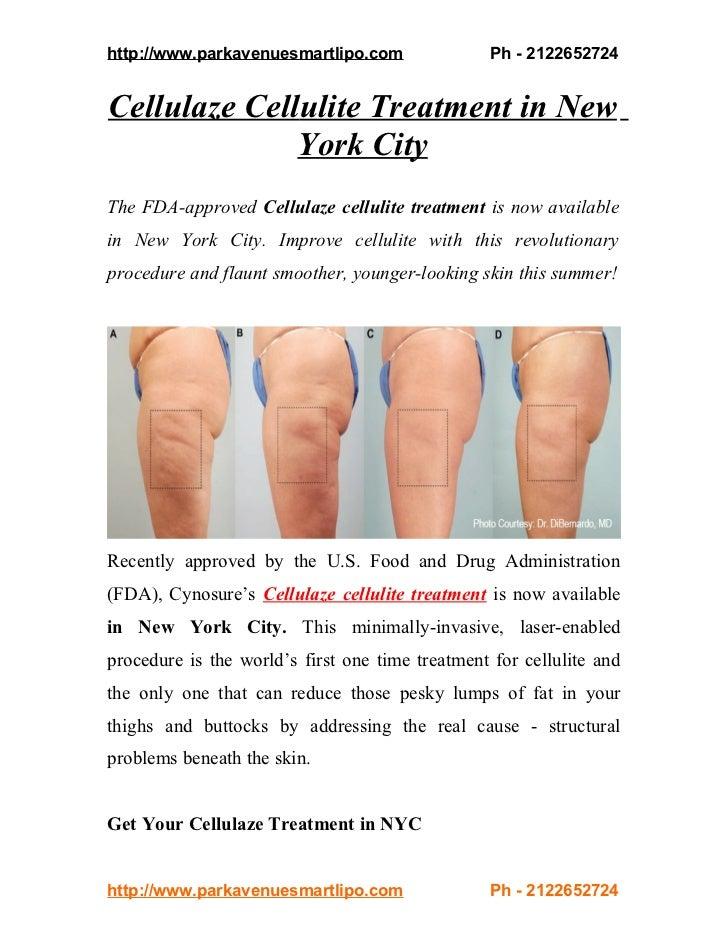 http://www.parkavenuesmartlipo.com                Ph - 2122652724Cellulaze Cellulite Treatment in New              York Ci...