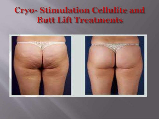 Cellulite and butt lift Slide 3