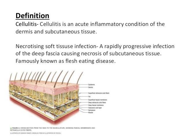 Cellulitis vs necrotizing soft tissue infection