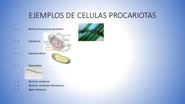 EJEMPLOS DE CELULAS PROCARIOTAS • • Bacterias filamentosas deslizantes • • Eubacterias • • Arqueobacterias • • Espiroqueta...