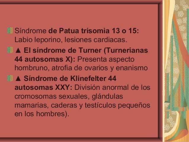 Síndrome de Patua trisomia 13 o 15:Labio leporino, lesiones cardiacas.▲ El síndrome de Turner (Turnerianas44 autosomas X):...