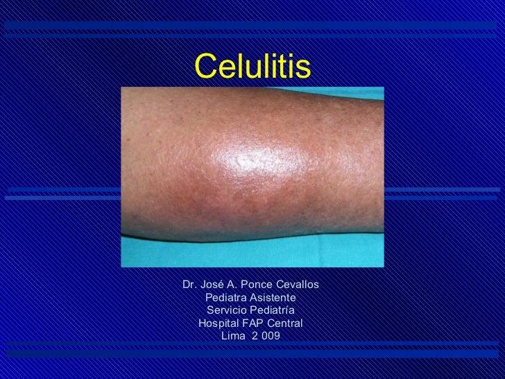 Celulitis <ul><li>Dr. José A. Ponce Cevallos </li></ul><ul><li>Pediatra Asistente </li></ul><ul><li>Servicio Pediatría </l...