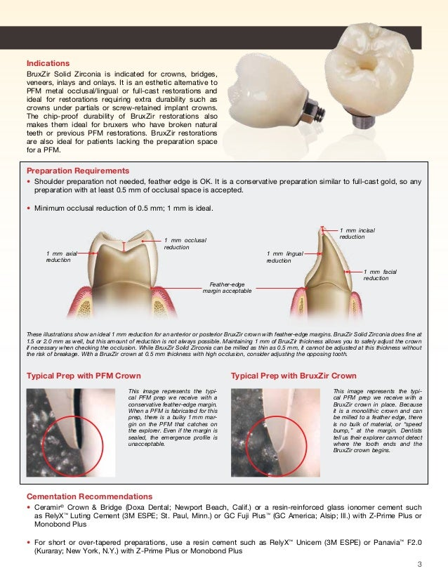 Cementation Of Zirconia Crowns