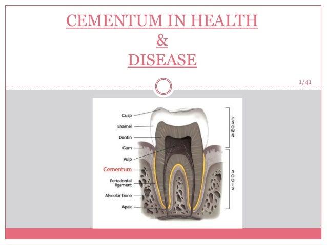 Cementum in health and disease