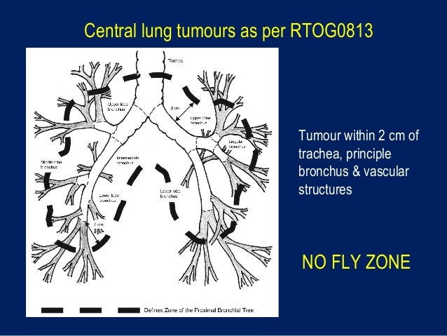 central lung tumour   u0026 39 flying in no flying zone u0026 39