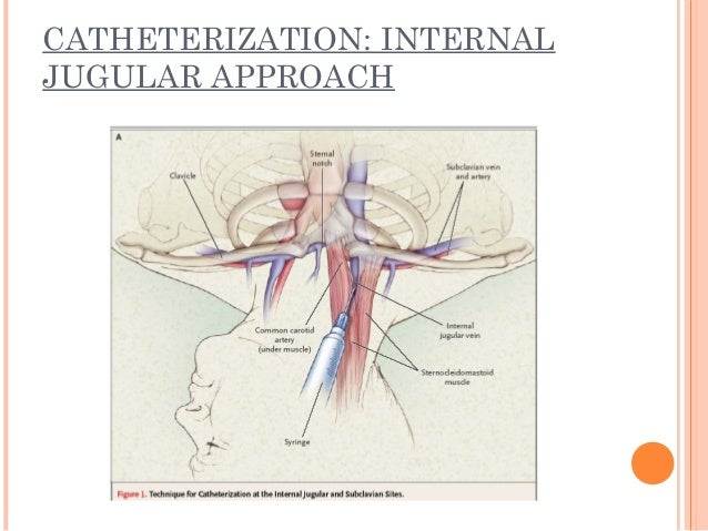 Central Venous Lines And Their Problems