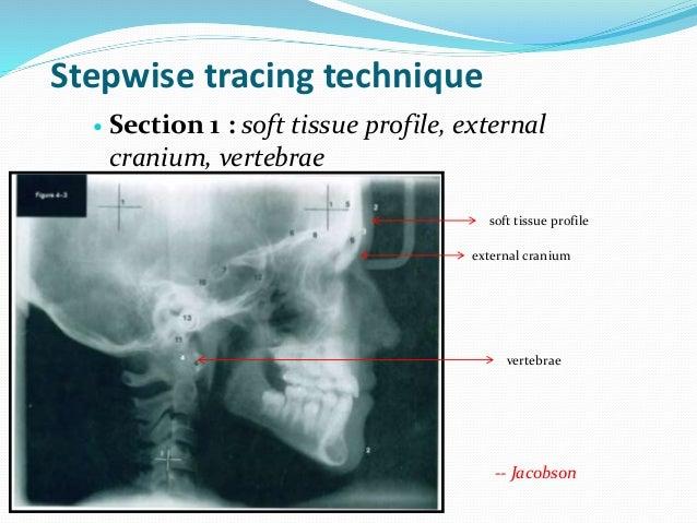 Stepwise tracing technique  Section 1 : soft tissue profile, external cranium, vertebrae soft tissue profile external cra...