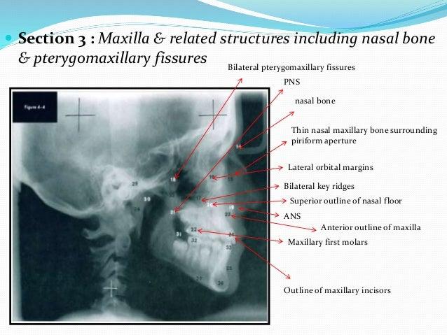  Section 3 : Maxilla & related structures including nasal bone & pterygomaxillary fissures nasal bone Thin nasal maxillar...