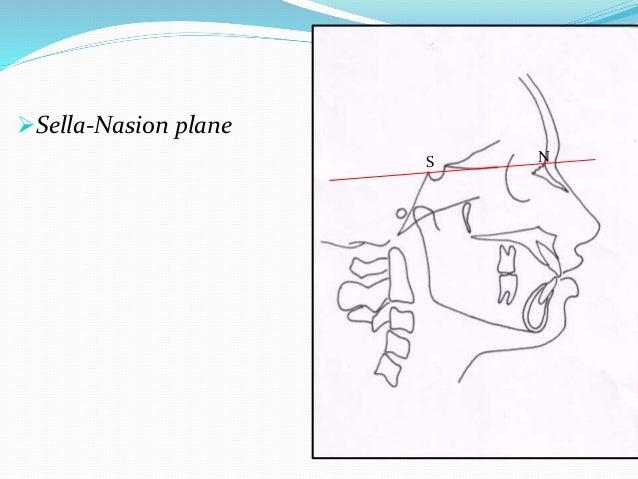 Sella-Nasion plane S N