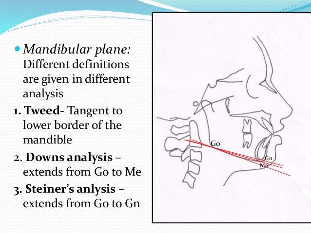  Mandibular plane: Different definitions are given in different analysis 1. Tweed- Tangent to lower border of the mandibl...