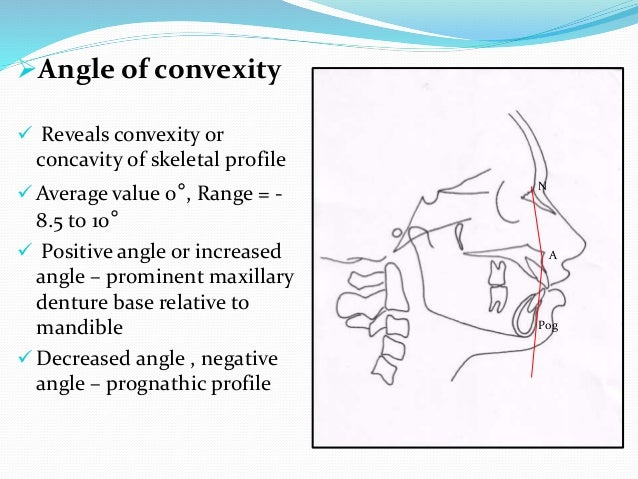Angle of convexity  Reveals convexity or concavity of skeletal profile  Average value 0°, Range = - 8.5 to 10°  Positi...