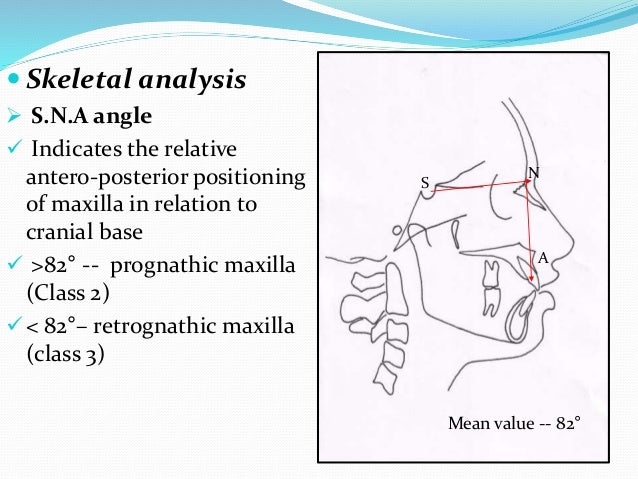  Skeletal analysis  S.N.A angle  Indicates the relative antero-posterior positioning of maxilla in relation to cranial ...