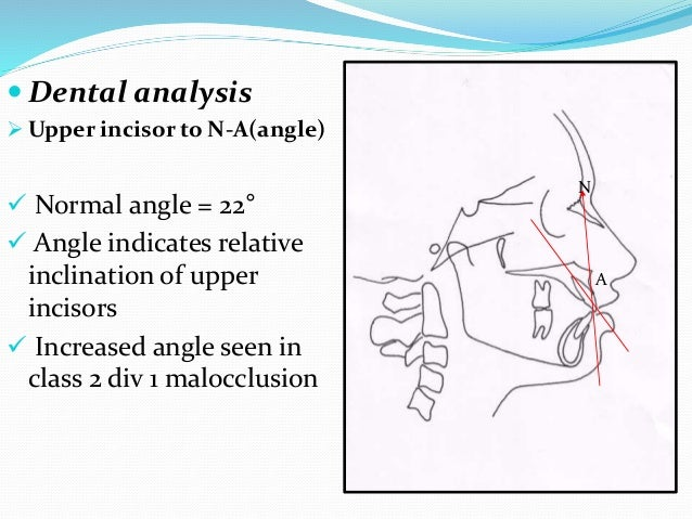  Dental analysis  Upper incisor to N-A(angle)  Normal angle = 22°  Angle indicates relative inclination of upper incis...