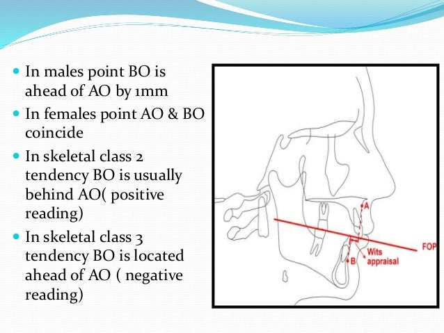  In males point BO is ahead of AO by 1mm  In females point AO & BO coincide  In skeletal class 2 tendency BO is usually...