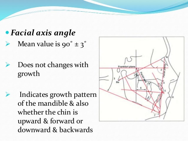  Facial (depth) angle  Changes with growth  Mean value is 87˚± 3˚ with an increase of 1˚ every 3 years  Indicates the ...