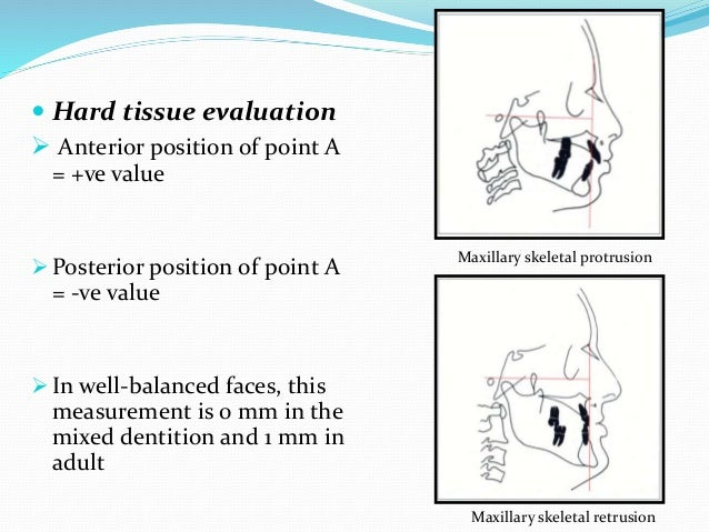 Maxilla to mandible Anteroposterior relationship  Linear relationship exists between effective length of midface & that ...