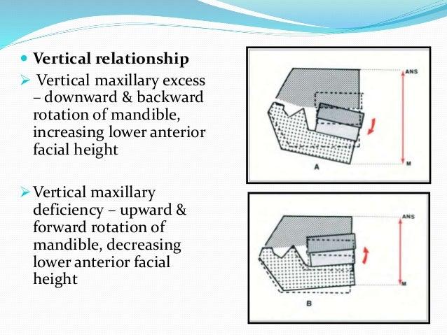 b) Mandibular plane angle  On average, the mandibular plane angle is 22 degrees ± 4 degrees  A higher value  excessive ...