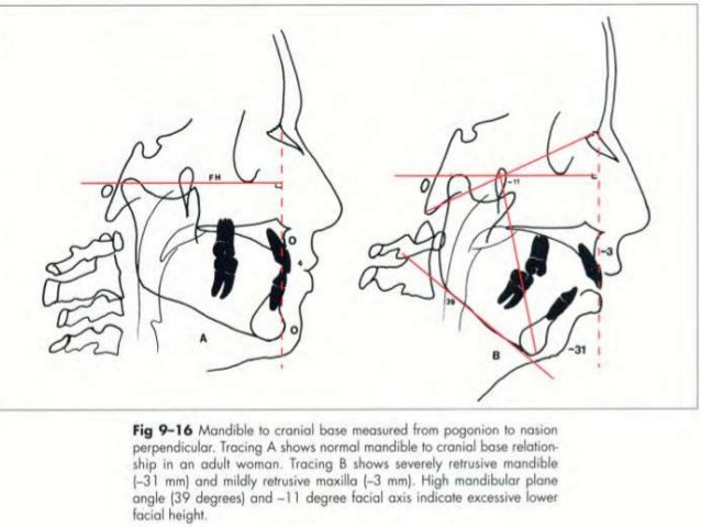  Lower Pharynx Width – point of intersection of posterior border of tongue & inferior border of mandible to closest poin...
