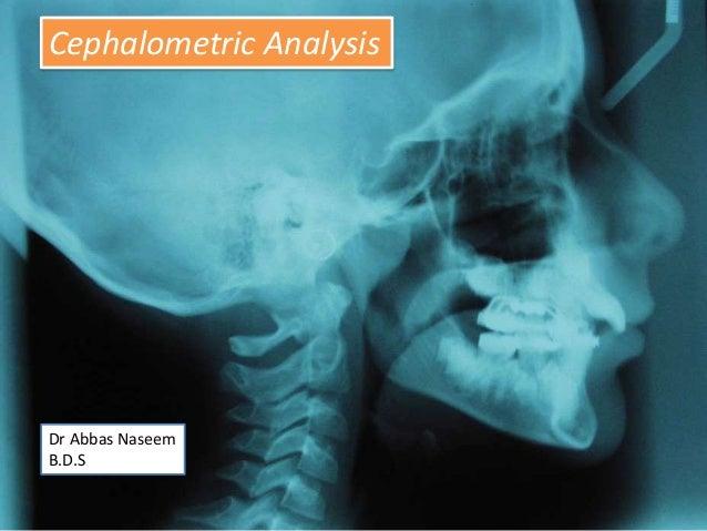Cephalometric Analysis  Dr Abbas Naseem B.D.S