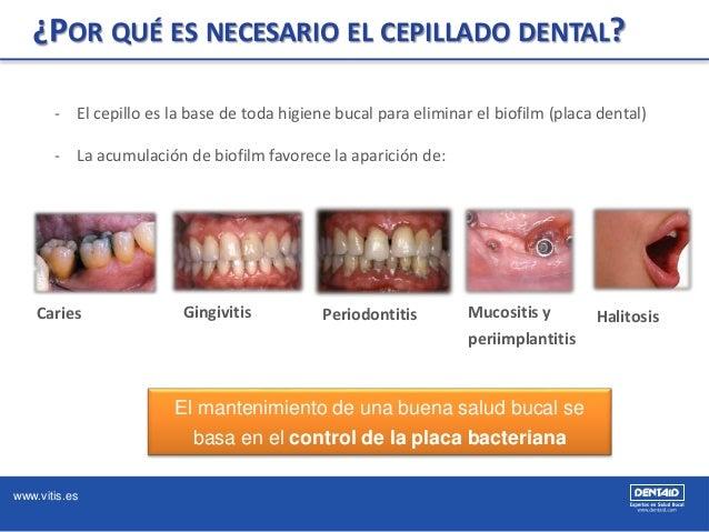 www.vitis.es ¿POR QUÉ ES NECESARIO EL CEPILLADO DENTAL? - El cepillo es la base de toda higiene bucal para eliminar el bio...