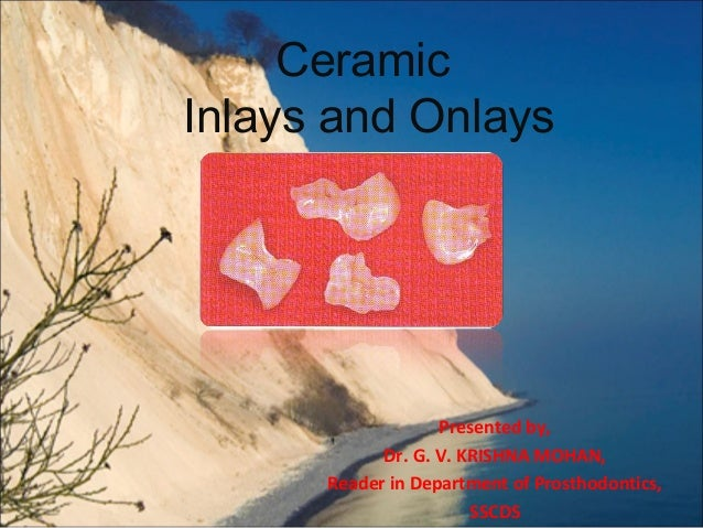 Ceramic Inlays and Onlays  Presented by, Dr. G. V. KRISHNA MOHAN, Reader in Department of Prosthodontics, SSCDS