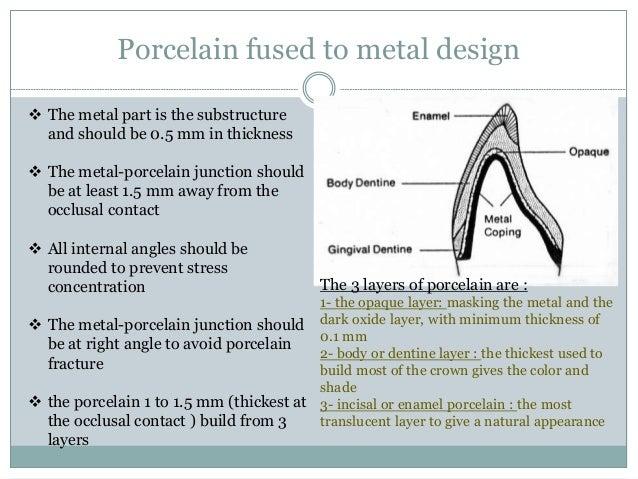 Niobium/alumina bicrystal interface fracture
