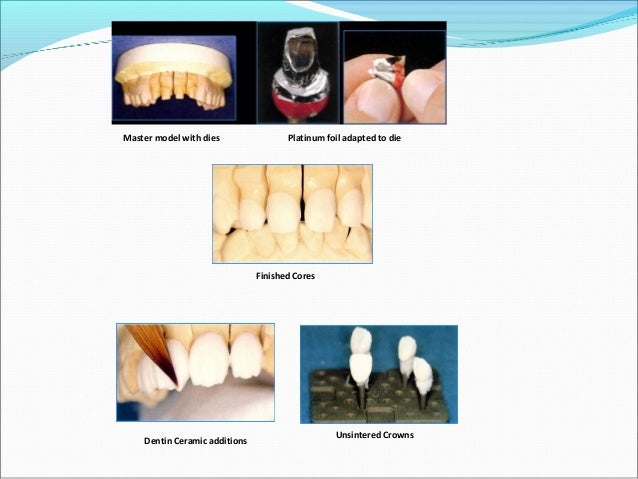 Moderately high flexural strength Good marginal fit Low thermal expansion equal to that of tooth structure Minimal abr...