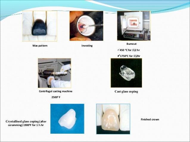 Wax pattern Investing Burnout 8500 C Ceramic ingots Pressing under vaccum 11500 C Sprue removal