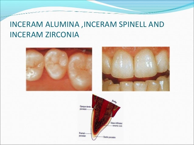Step-by step Procedure Tooth preparation follows all-ceramic guidelines. The cast is made in the conventional way, but ...