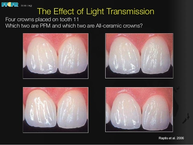Ceramics In Fixed Prosthodontics Considerations For Use In