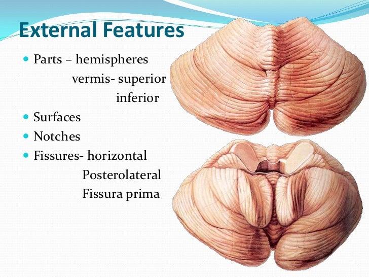 External Features Parts – hemispheres         vermis- superior                 inferior Surfaces Notches Fissures- hor...