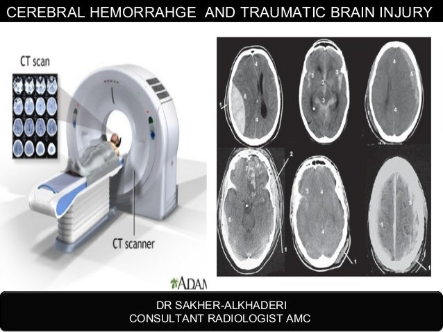 traumatic brain injury thesis Free brain injury papers, essays, and of traumatic brain injury - thesis - loss of consciousness from brain injury versus amnesia brain injuries have been.