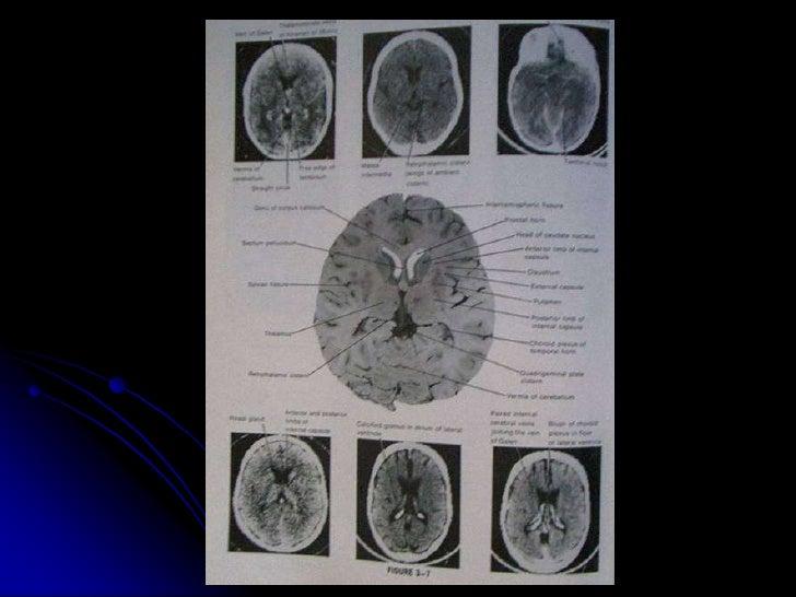 Cerebral Hemorrhage By Arlyn M. Valencia, M.D. Associate Professor Of…