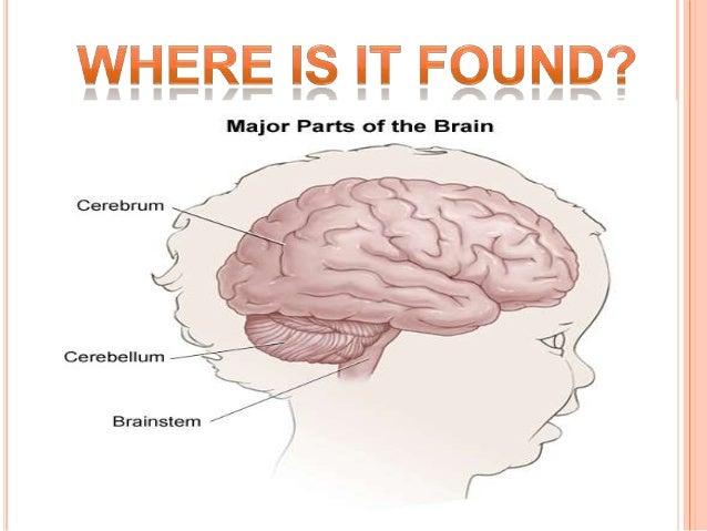 Anatomy of cerebral palsy