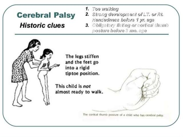mild cerebral palsy in children