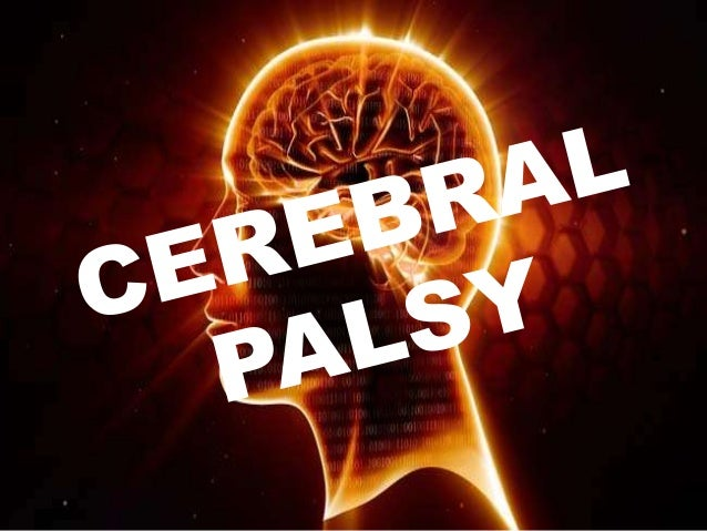 "HISTORY ""CEREBRAL PALSY"" was first identified by a English Surgeon ""WILLIAM LITTLE"" in 1860. It is also called as Little's..."