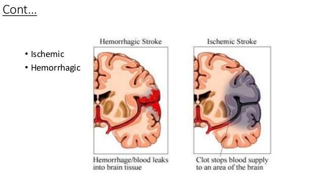 ischemic hemorrhagic