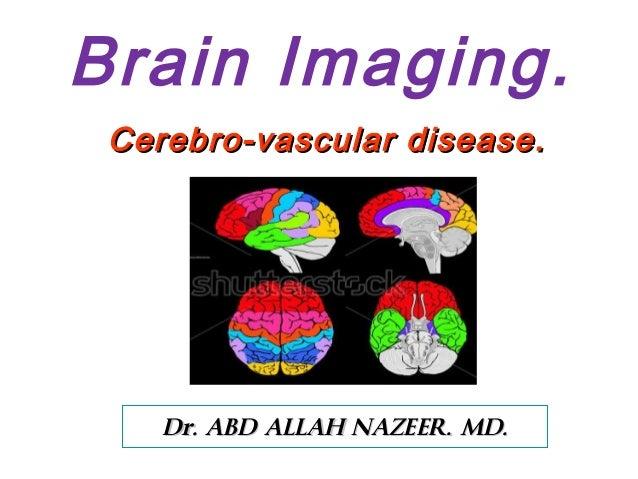 Brain Imaging Cerebro-vascular disease  Dr. ABD ALLAH NAZEER. MD.