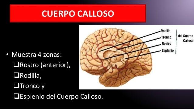 Cerebro aplicada